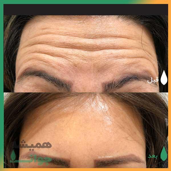 قبل و بعد از تزریق botox