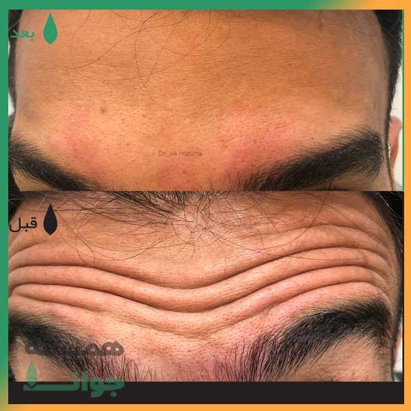 قبل و بعد از تزریق بوتاکس