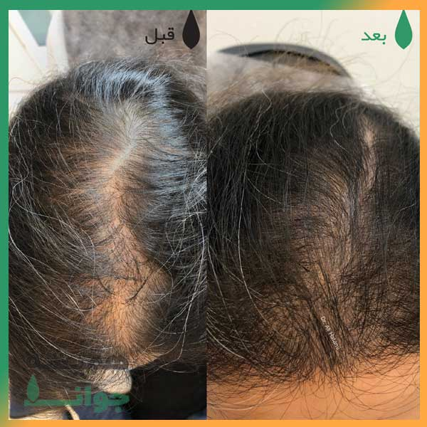 مزوتراپی مو در کلینیک سرو